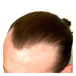 © Copyright. True Hair Replacement & Cosmetics Centre Inc.