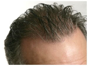 True Hair - Transplant Repair